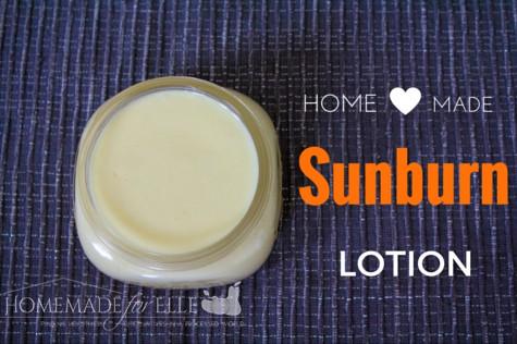Homemade Sunburn Lotion